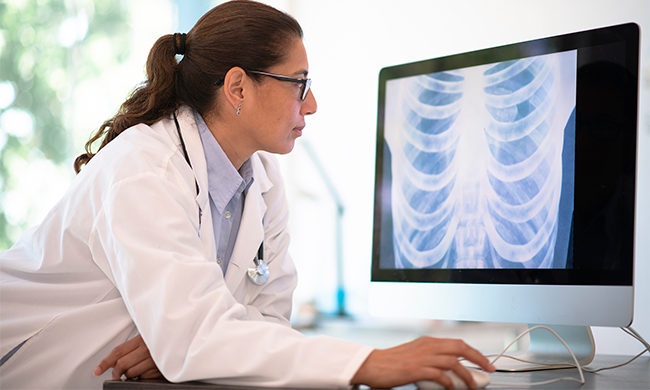 Advances in Treating Non-Small Cell Lung Cancer