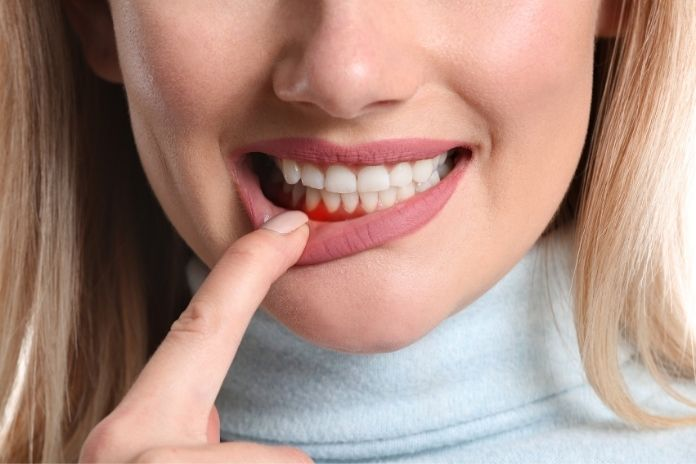 Top Dental Problems in Older Adults